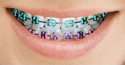 Tips During Orthodontics Invisalign