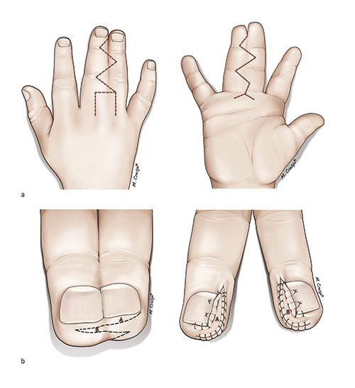 Syndactyly Disease: Causes, Types And Treatment Available