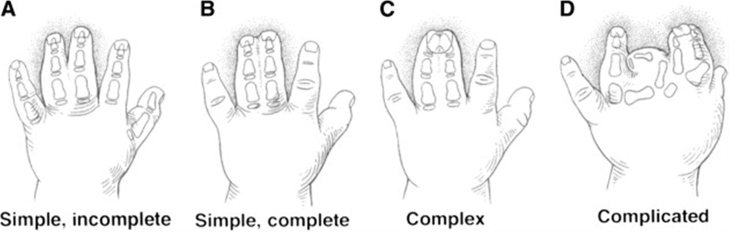 Types Of Syndactyly Disease