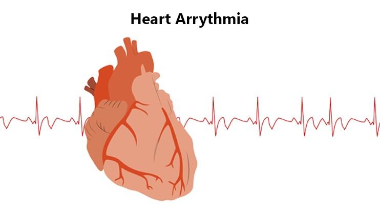 Heart Arrhythmia: Symptoms, Causes And Prevention