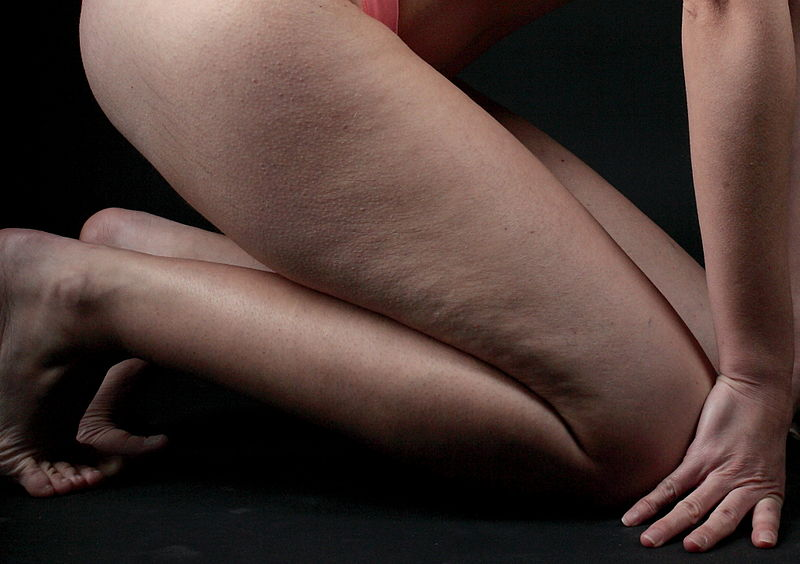 Effective Ways To Reduce The Appearance Of Cellulite