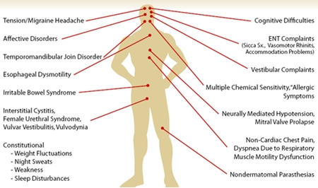 7 Common Types Of Fibromyalgia Pain