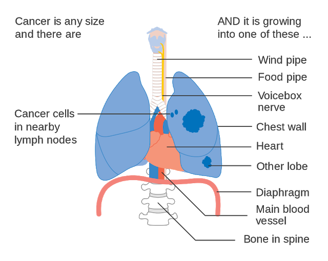 Know All About Lung Cancer