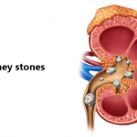 Signs Of Kidney Stones